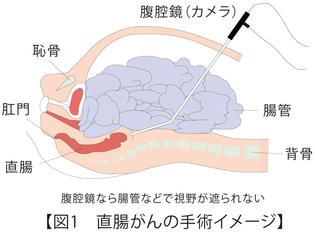 直腸がんの手術イメージ